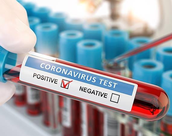 9 nowych przypadków zakażeń SARS - CoV - 2 w Świnoujściu